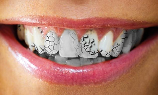 Traiter l'usure dentaire grâce à une intervention minimale