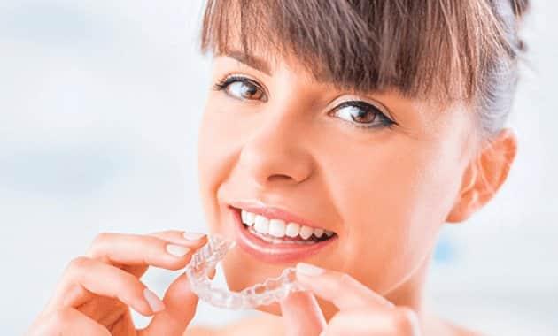 Accélérer les traitements orthodontiques - Dr Julien Godenèche