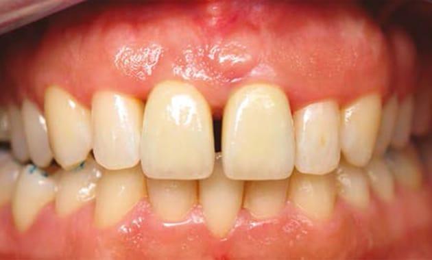 gros plan de dents