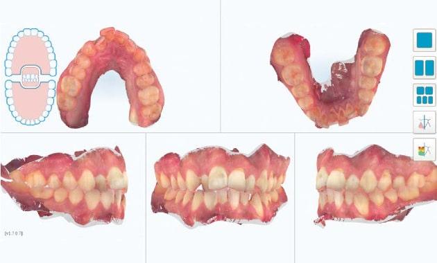 dentition numérique