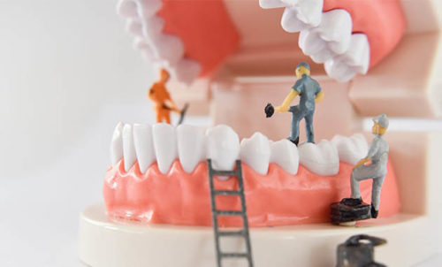 Dentier en travaux