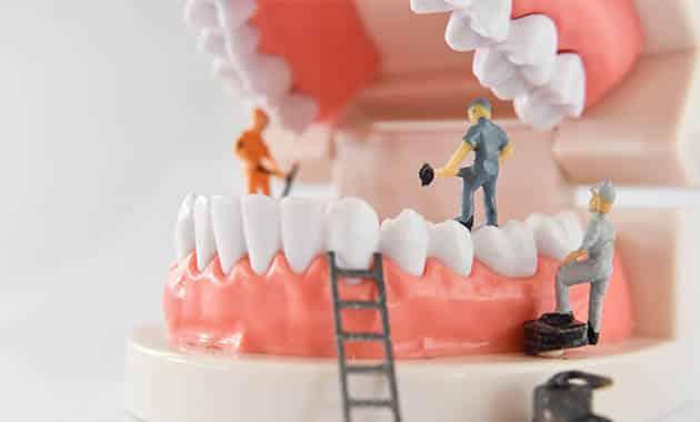 Dentier en travaux