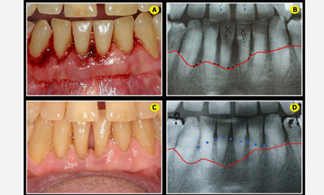 parodontites et peri-implantites