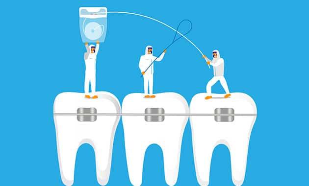 dessin orthodontie