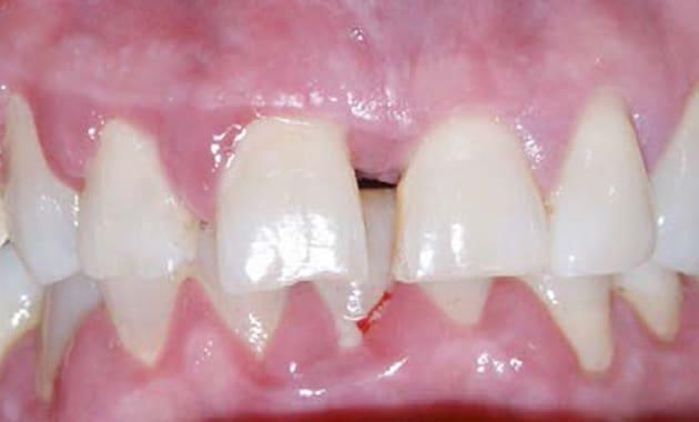 Thérapeutiques parodontales