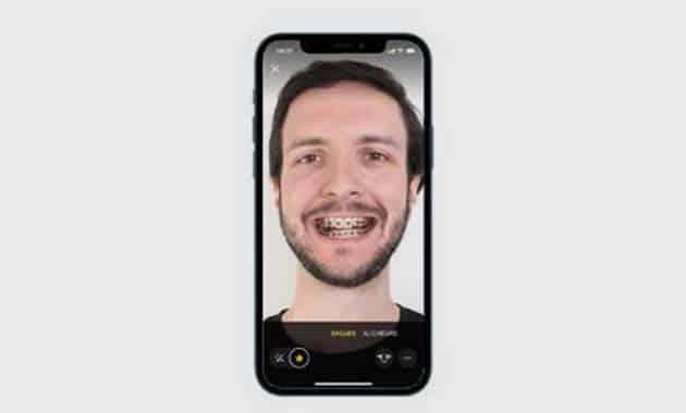 Smile Mate et Vision outils numériques