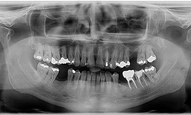 Panoramique endodontie