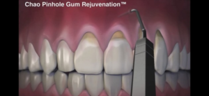 Protocole récessions gingivales
