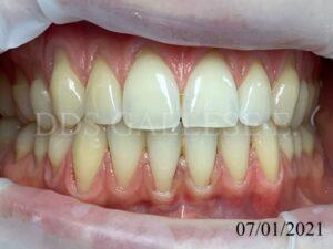 Récessions au maxillaire et à la mandibule.