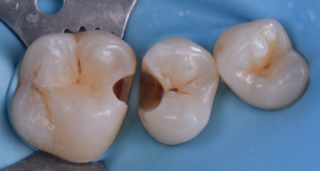 Exercice dentaire