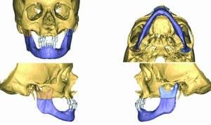 Planification de l'ostéotomie courte.