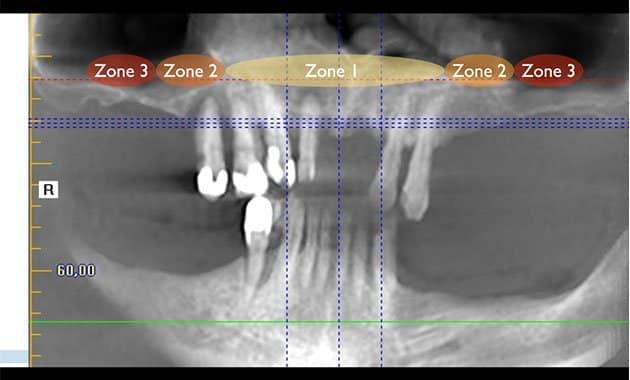 Différentes zones du maxillaire selon la classification de Bedrossian.