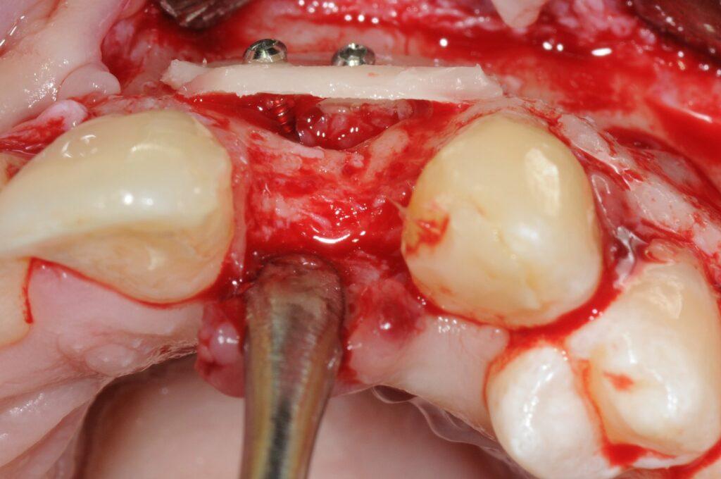 Nouvelle crête reconstruite avec une lamelle d'os stabilisée à l'aide de visd'ostéosynthèse.