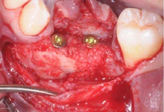 Deux implants Xive sont mis en place.