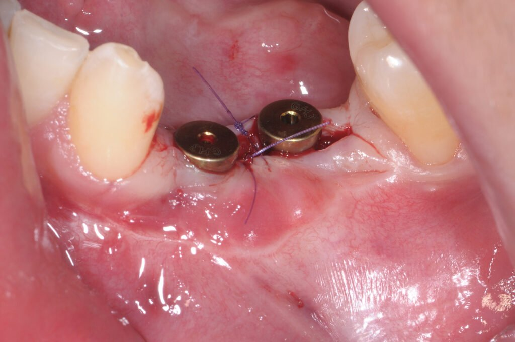 Mise en condition des implants.