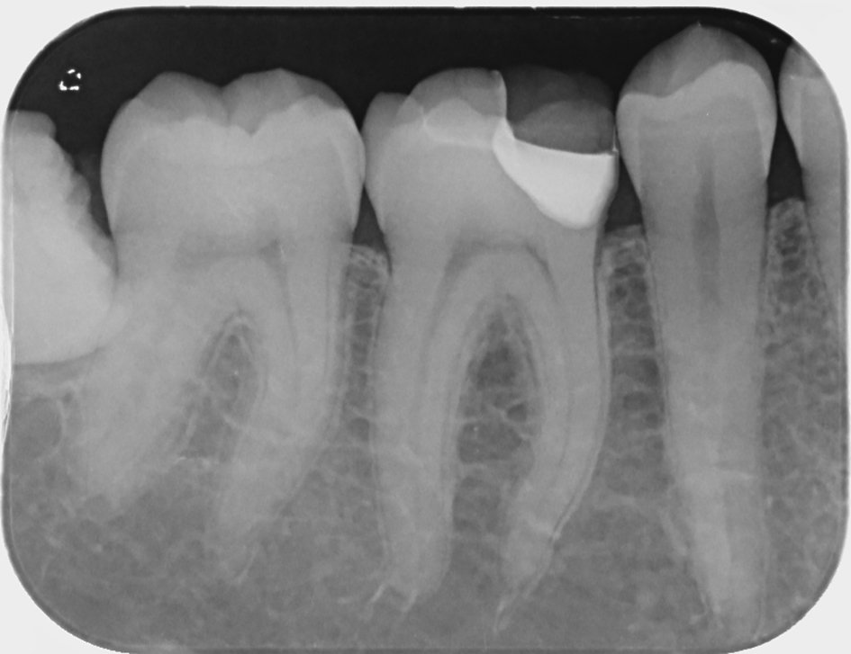 Sensibilités postopératoires dentaires
